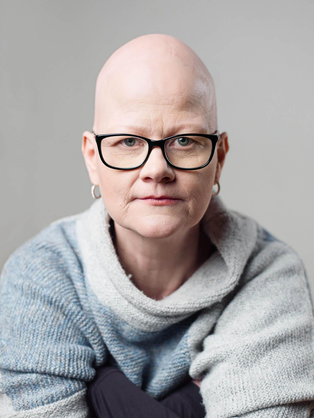 alopecia nuorella